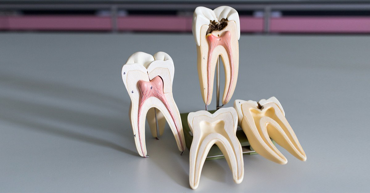 best root canal dentist singapore